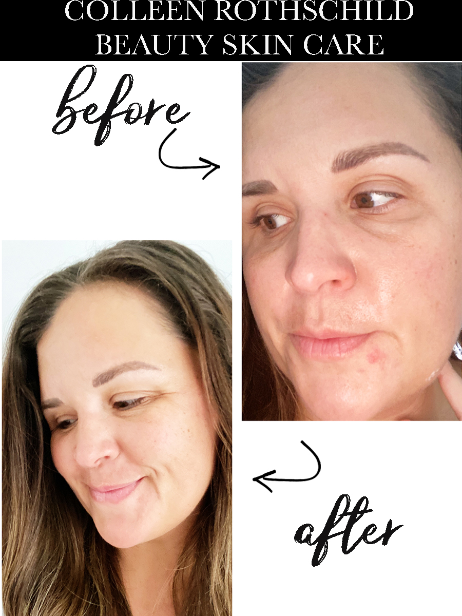 How to Start and Anti Aging Skin Care Routine With Colleen Rothschild Hair and Skin Care Routine with Colleen Rothschild Products hair and skin products to help aging skin spots and melanoma before and after pictures